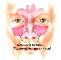 20130531165021maxilaren_sinus